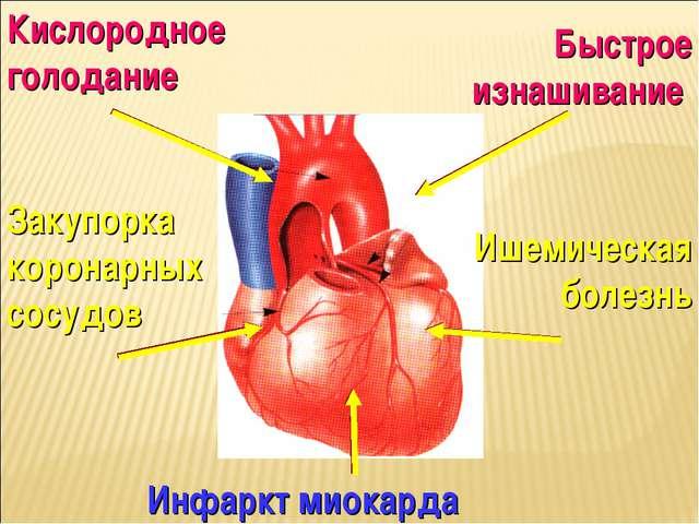 Быстрое изнашивание Закупорка коронарных сосудов Инфаркт миокарда Ишемическая...