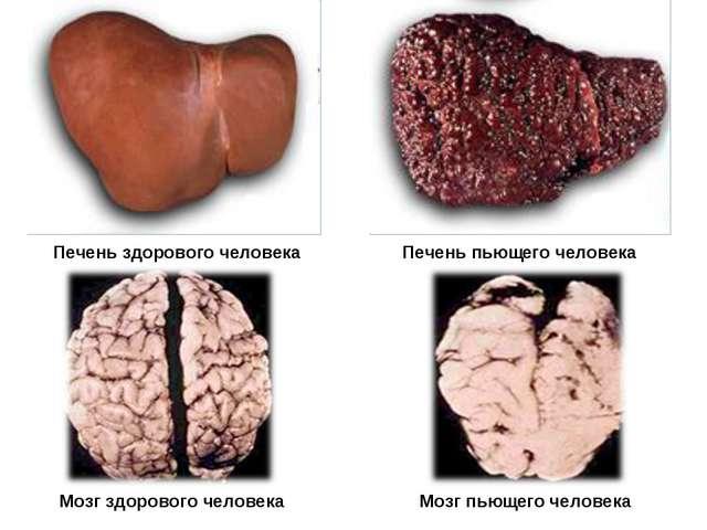 Печень здорового человека Печень пьющего человека Мозг здорового человека Моз...