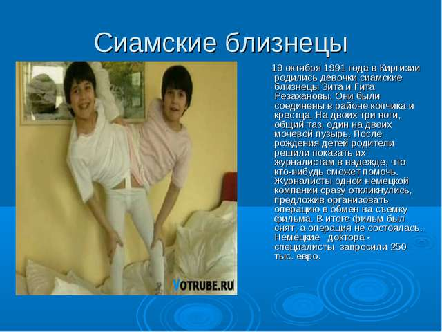 Сиамские близнецы 19 октября 1991 года в Киргизии родились девочки сиамские б...