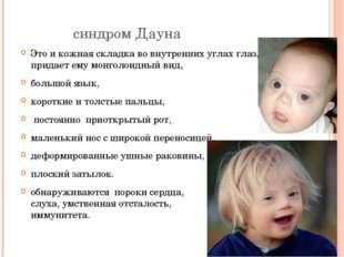 синдром Дауна Это и кожная складка во внутренних углах глаз, которая придает