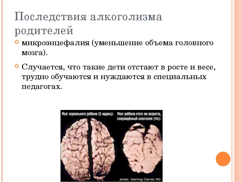 Последствия алкоголизма родителей микроэнцефалия (уменьшение объема головного...