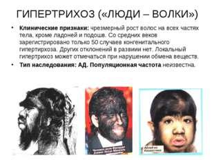 ГИПЕРТРИХОЗ («ЛЮДИ – ВОЛКИ») Клинические признаки: чрезмерный рост волос на в