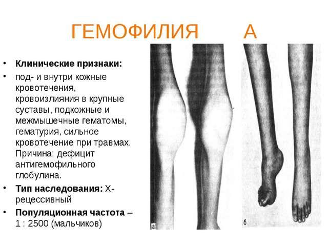 ГЕМОФИЛИЯ А Клинические признаки: под- и внутри кожные кровотечения, кровоизл...