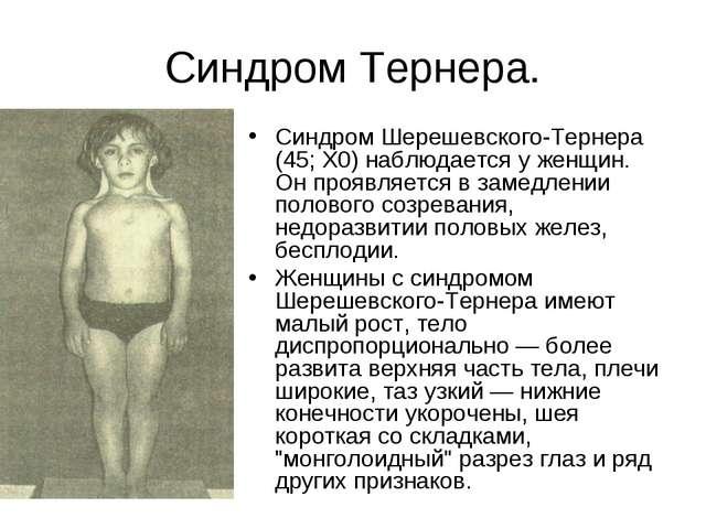 Синдром Тернера. Синдром Шерешевского-Тернера (45; Х0) наблюдается у женщин....
