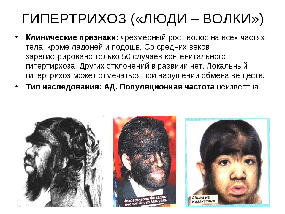ГИПЕРТРИХОЗ («ЛЮДИ – ВОЛКИ») Клинические признаки: чрезмерный рост волос на в...