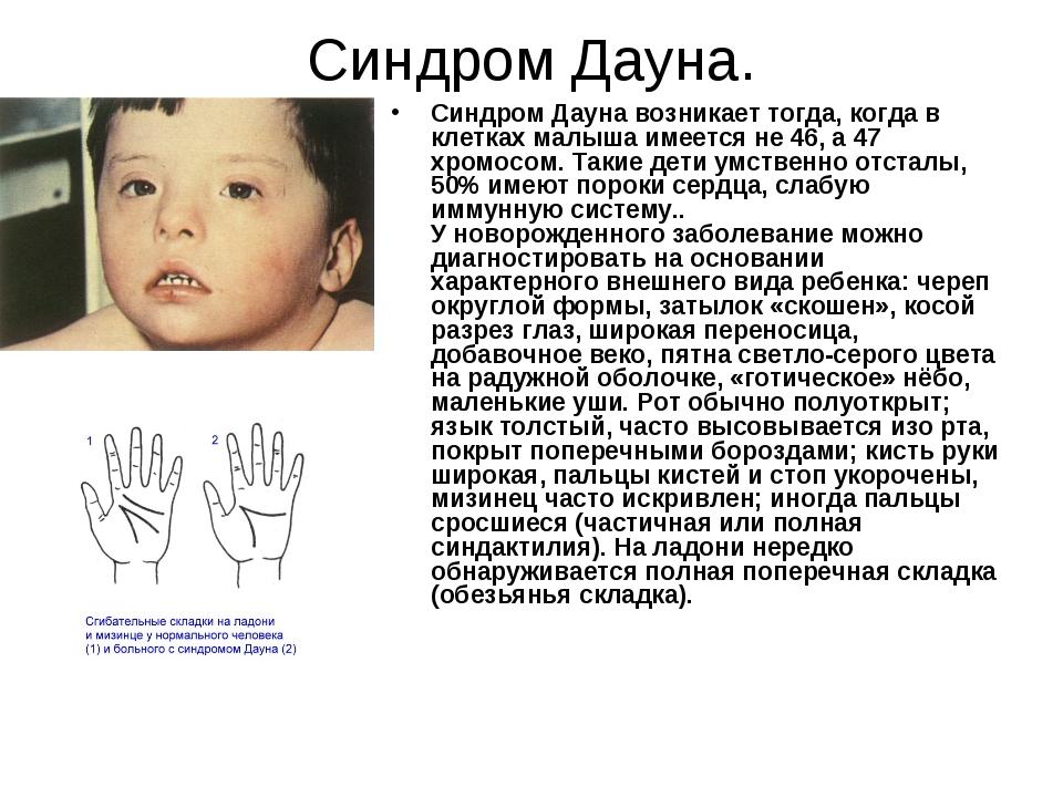 Синдром Дауна. Синдром Дауна возникает тогда, когда в клетках малыша имеется...