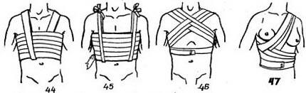 http://www.medical-enc.ru/5/images/desmurgy44-47.jpg