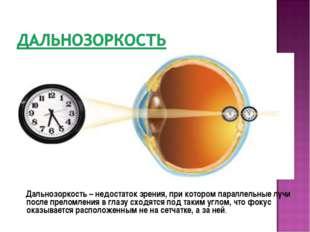 Дальнозоркость – недостаток зрения, при котором параллельные лучи после прел