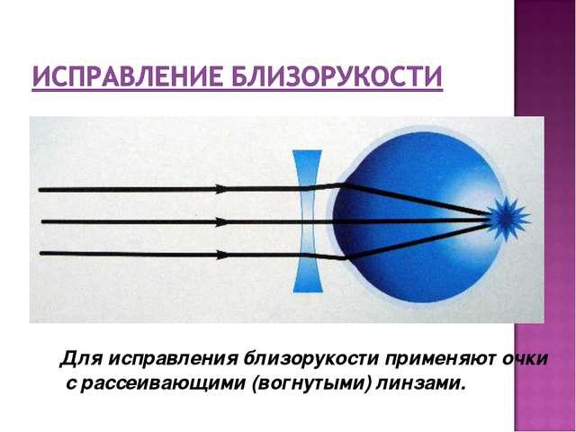 Для исправления близорукости применяют очки с рассеивающими (вогнутыми) линз...