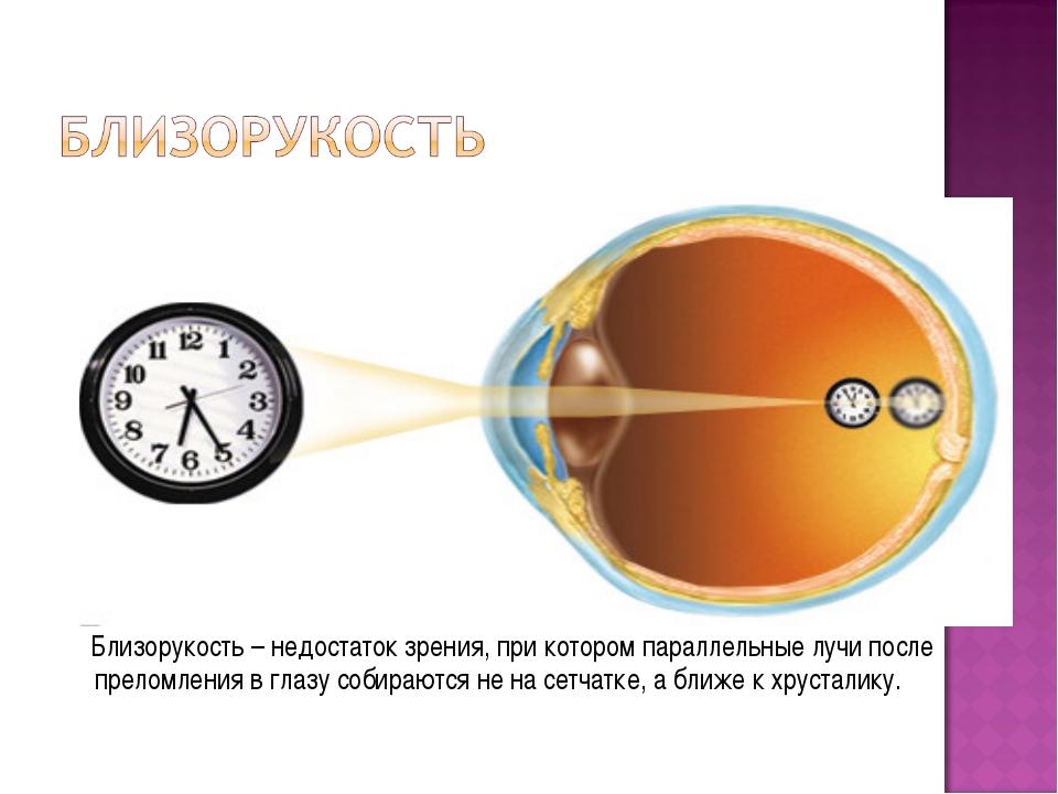 Близорукость – недостаток зрения, при котором параллельные лучи после прелом...