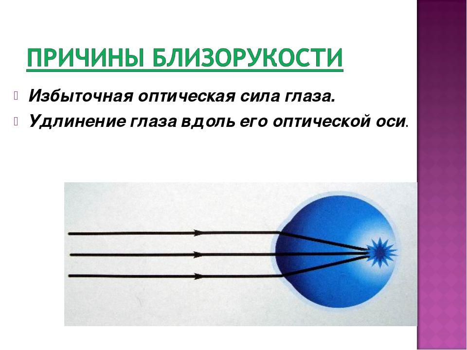 Избыточная оптическая сила глаза. Удлинение глаза вдоль его оптической оси.