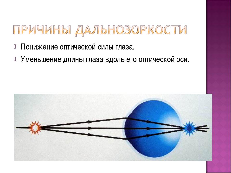 Понижение оптической силы глаза. Уменьшение длины глаза вдоль его оптической...
