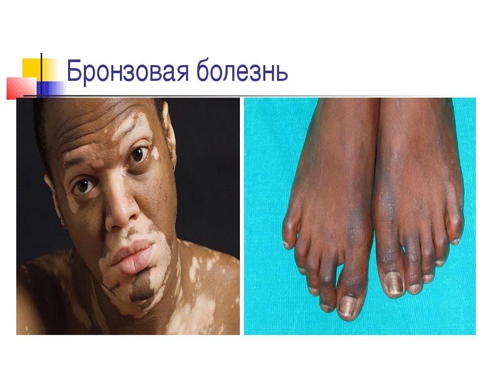 фотографии заболеваний языка