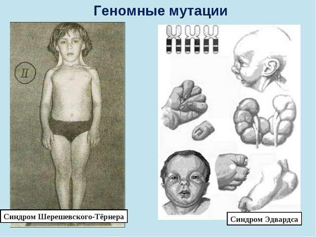 Геномные мутации Синдром Шерешевского-Тёрнера Синдром Эдвардса