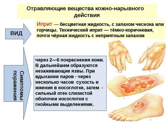 Отравляющие вещества кожно-нарывного действия ВИД Иприт — бесцветная жидкость...