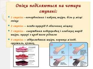 Опіки поділяються на чотири ступені: 1 ступінь –почервоніння і набряк шкіри,