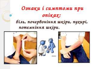Ознаки і симптоми при опіках: біль, почервоніння шкіри, пухирі, потемніння шк