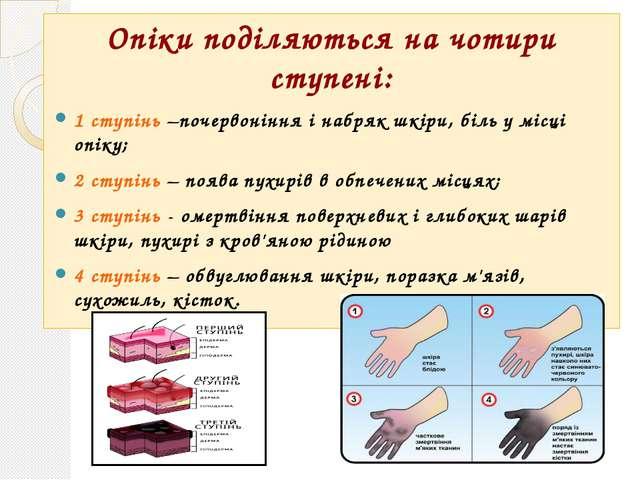 Опіки поділяються на чотири ступені: 1 ступінь –почервоніння і набряк шкіри,...