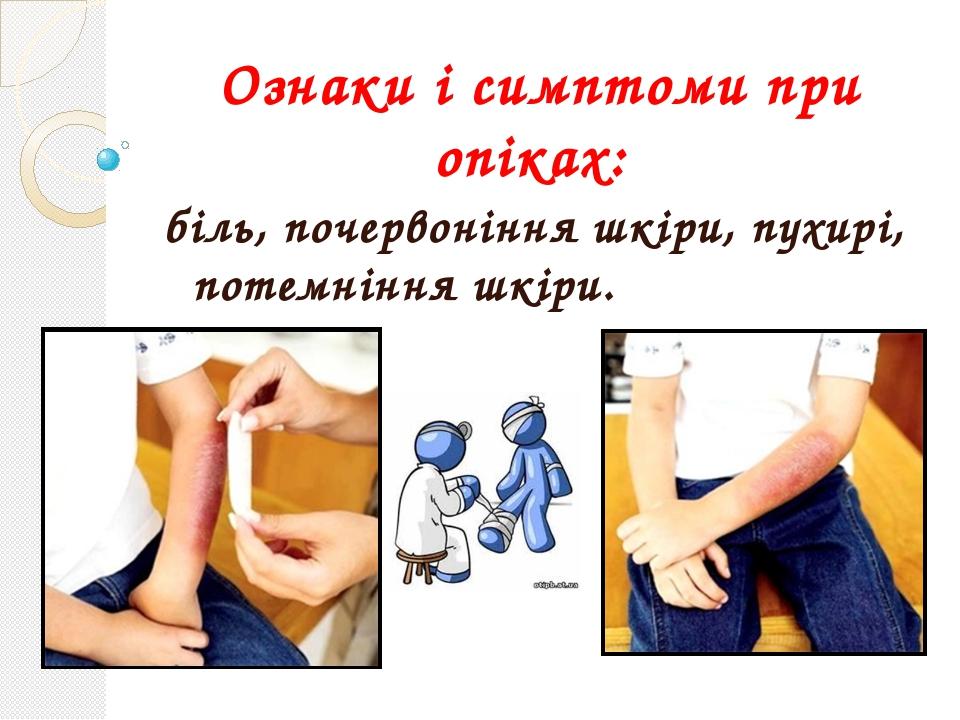 Ознаки і симптоми при опіках: біль, почервоніння шкіри, пухирі, потемніння шк...