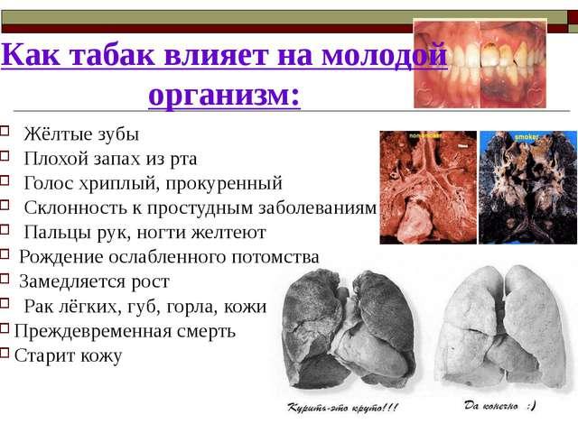Как табак влияет на молодой организм: Жёлтые зубы Плохой запах из рта Голос х...