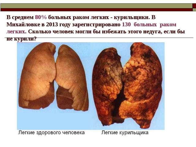 В среднем 80% больных раком легких - курильщики. В Михайловке в 2013 году зар...