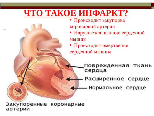 ЧТО ТАКОЕ ИНФАРКТ? Происходит закупорка коронарной артерии Нарушается питание...