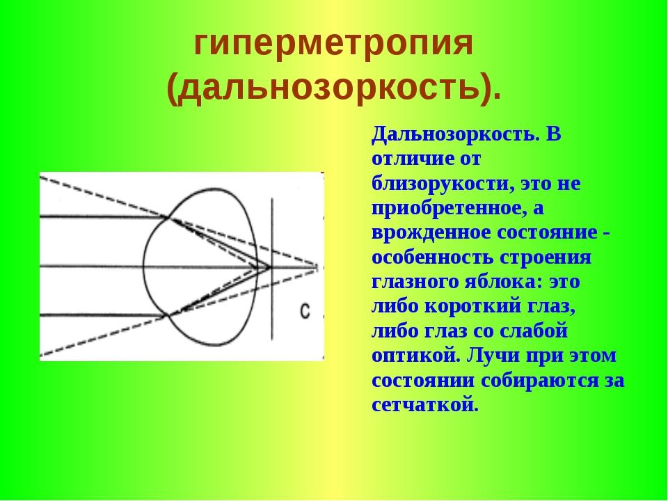 гиперметропия (дальнозоркость). Дальнозоркость. В отличие от близорукости, э...