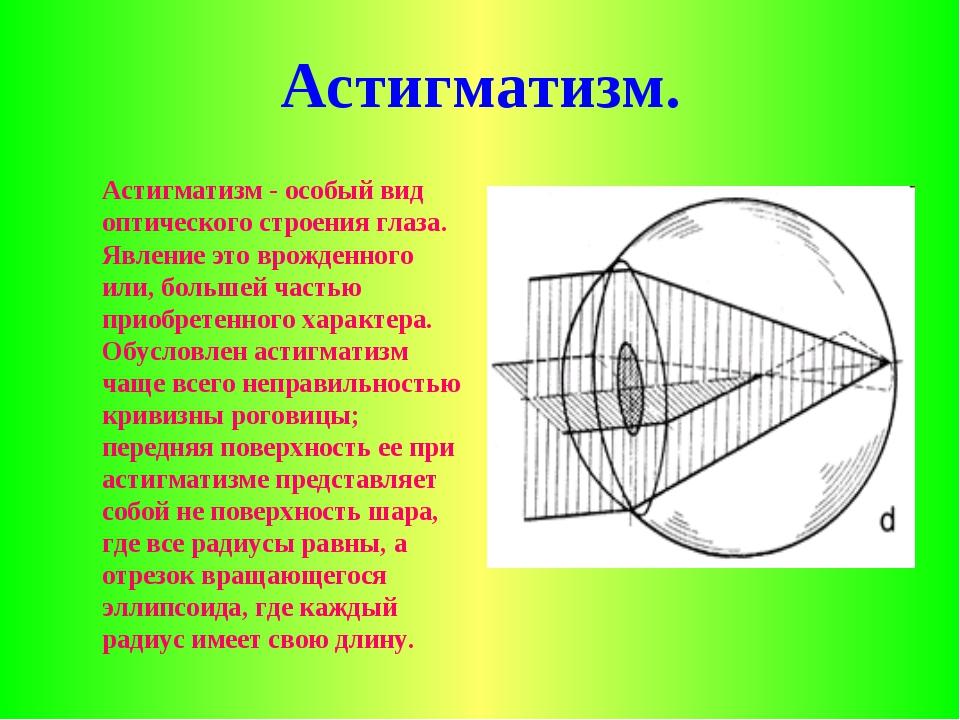 Астигматизм. Астигматизм - особый вид оптического строения глаза. Явление эт...