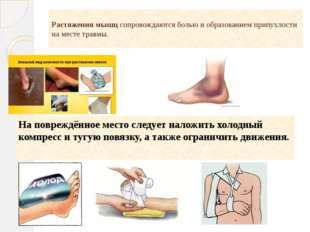 Растяжения мышц сопровождаются болью и образованием припухлости на месте трав