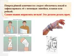 Повреждённой конечности следует обеспечить покой и зафиксировать её с помощью