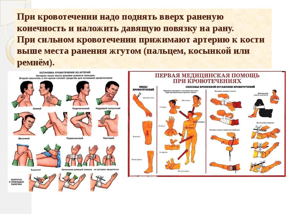 При кровотечении надо поднять вверх раненую конечность и наложить давящую пов...