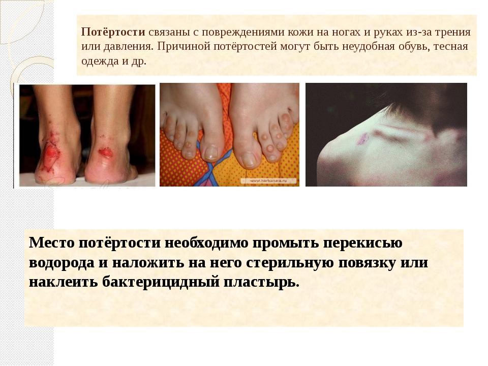 Потёртости связаны с повреждениями кожи на ногах и руках из-за трения или дав...