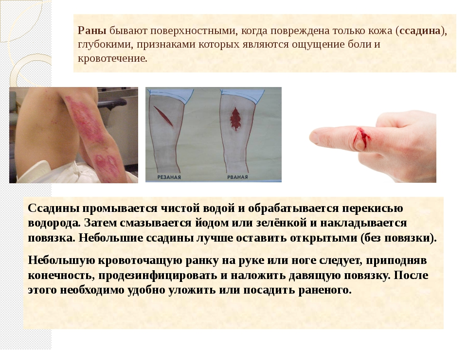 Раны бывают поверхностными, когда повреждена только кожа (ссадина), глубокими...