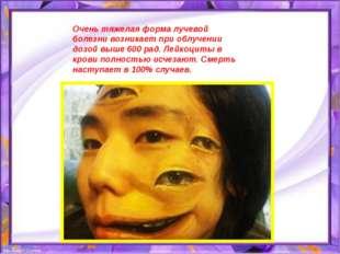 Очень тяжелая форма лучевой болезни возникает при облучении дозой выше 600 ра