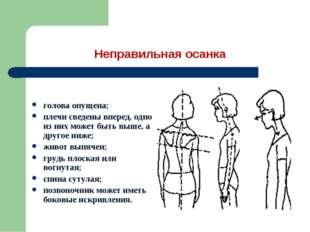 Неправильная осанка голова опущена; плечи сведены вперед, одно из них может б