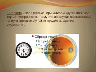 Катаракта – заболевание, при котором хрусталик глаза теряет прозрачность. Пом