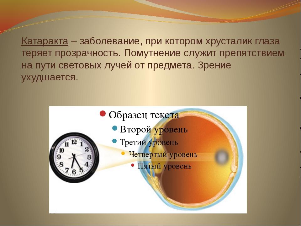 Катаракта – заболевание, при котором хрусталик глаза теряет прозрачность. Пом...