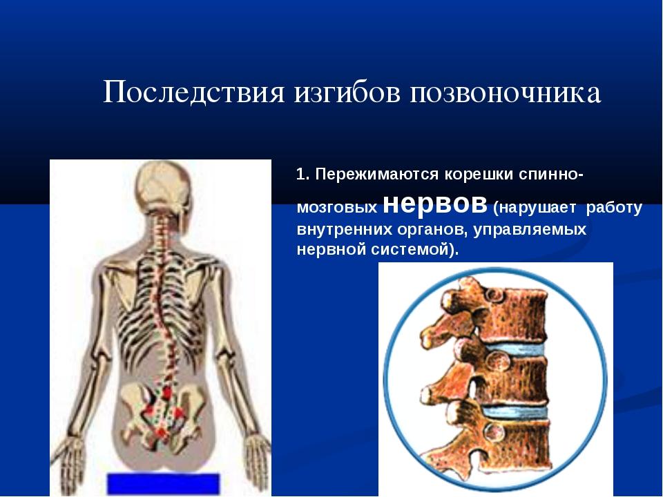 1. Пережимаются корешки спинно-мозговых нервов (нарушает работу внутренних ор...