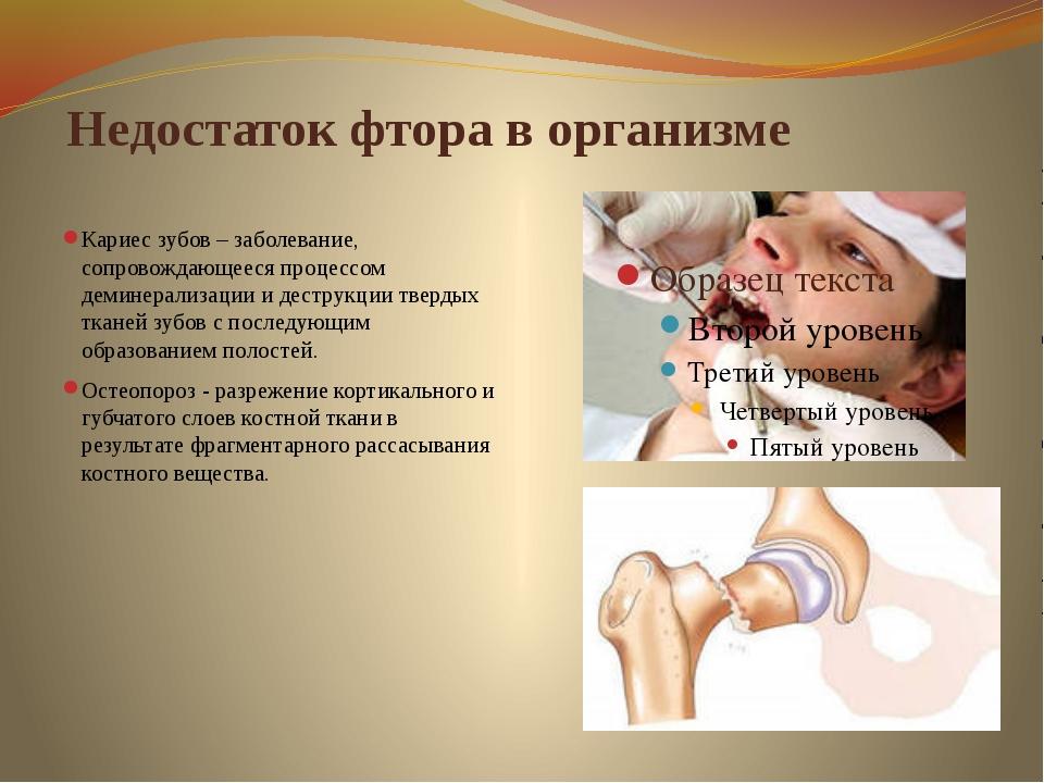 Недостаток фтора в организме Кариес зубов – заболевание, сопровождающееся пр...