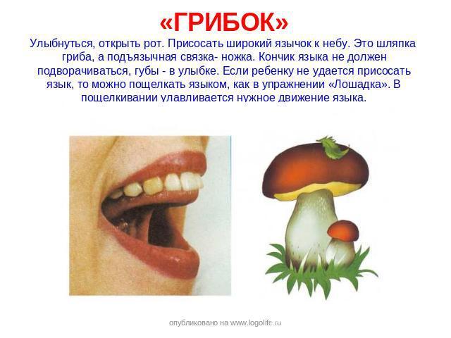 «ГРИБОК»Улыбнуться, открыть рот. Присосать широкий язычок к небу. Это шляпка гриба, а подъязычная связка- ножка. Кончик языка не должен подворачиваться, губы - в улыбке. Если ребенку не удается присосать язык, то можно пощелкать языком, как в упражн…