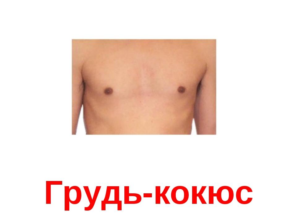 Грудь-кокюс