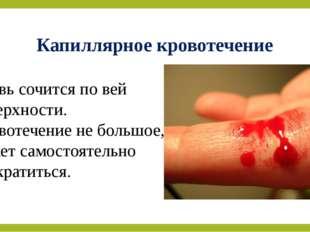 Капиллярное кровотечение Кровь сочится по вей поверхности. Кровотечение не бо