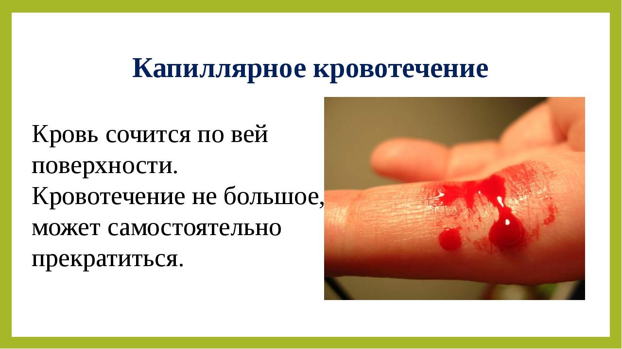 Капиллярное кровотечение Кровь сочится по вей поверхности. Кровотечение не бо...