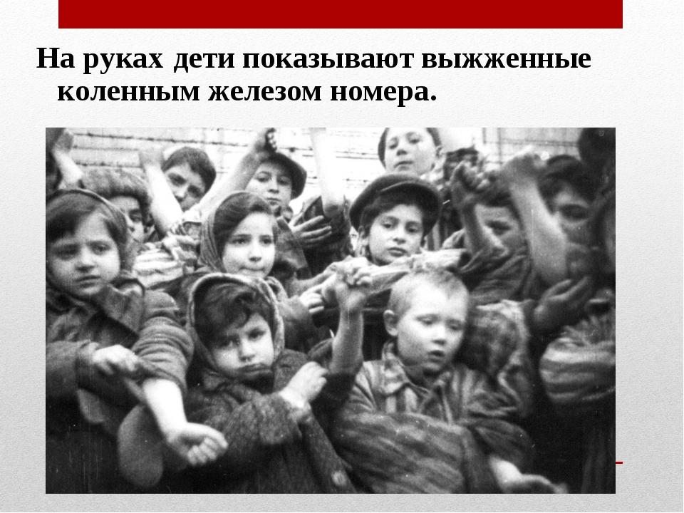 На руках дети показывают выжженные коленным железом номера.