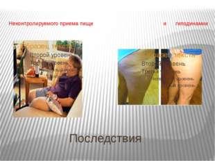 Последствия Неконтролируемого приема пищи и гиподинамии