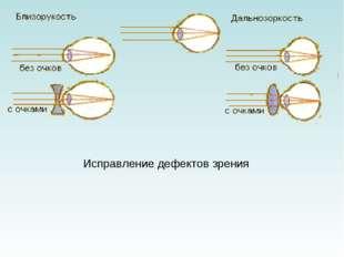 Исправление дефектов зрения