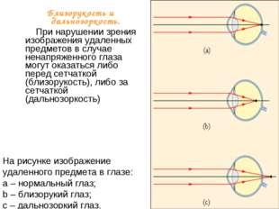 На рисунке изображение удаленного предмета в глазе: a – нормальный глаз; b –