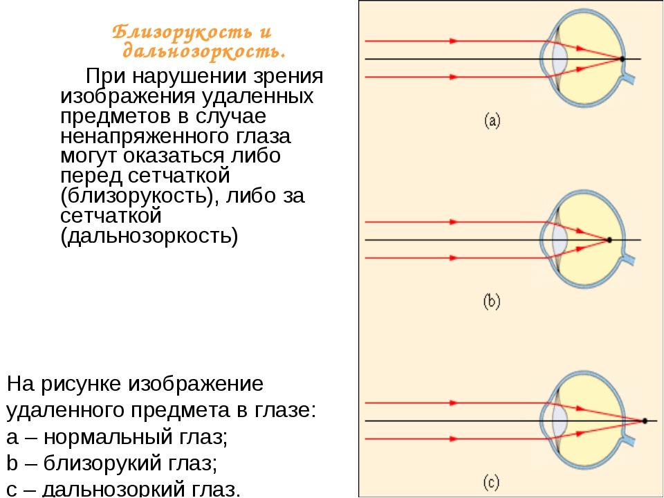 На рисунке изображение удаленного предмета в глазе: a – нормальный глаз; b –...