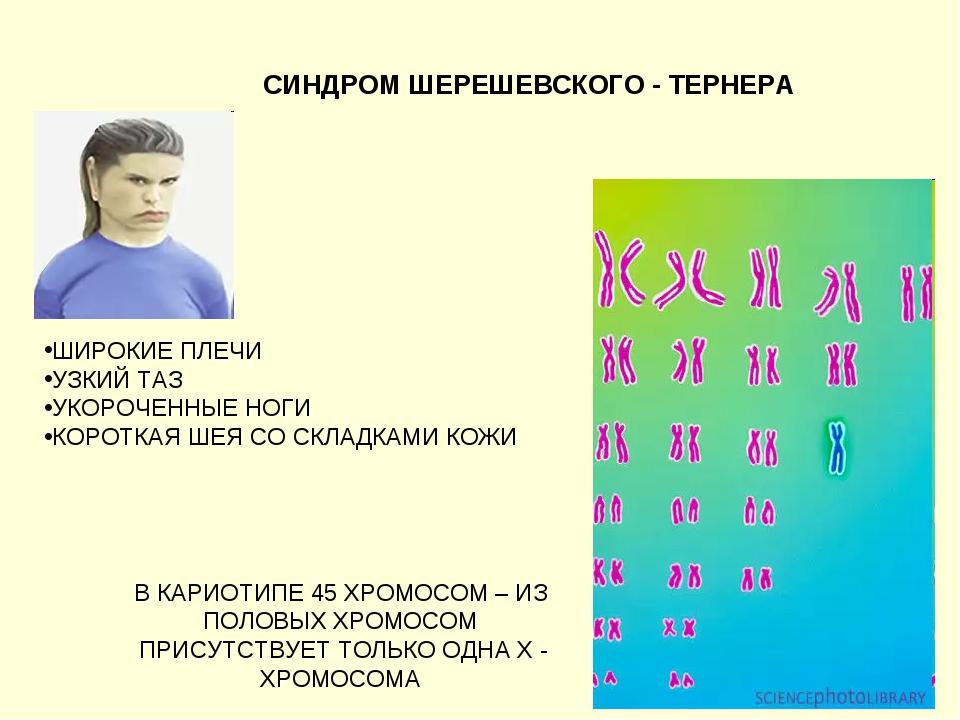 СИНДРОМ ШЕРЕШЕВСКОГО - ТЕРНЕРА В КАРИОТИПЕ 45 ХРОМОСОМ – ИЗ ПОЛОВЫХ ХРОМОСОМ...