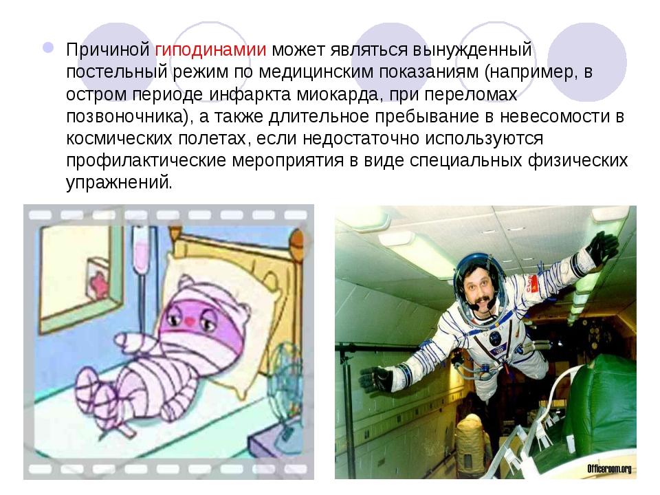 Причиной гиподинамии может являться вынужденный постельный режим по медицинск...